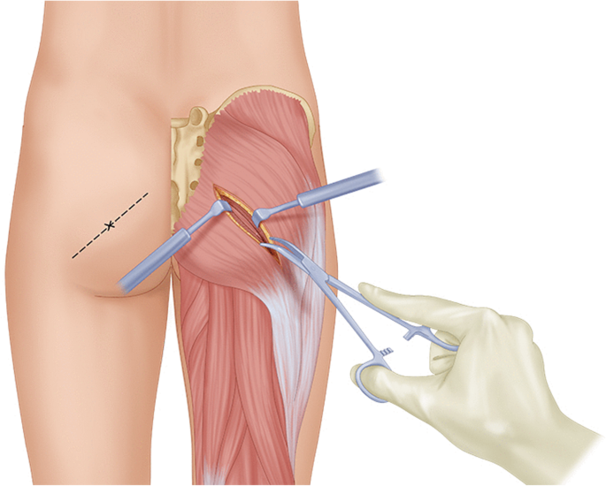 Steroid injection in buttocks pain steroids 50 years old
