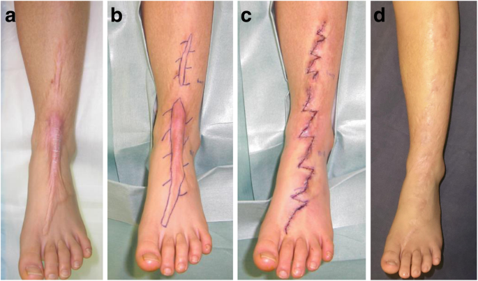 Surgery For Scar Revision And Reduction From Primary Closure To