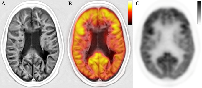 Molecular imaging of multiple sclerosis: from the clinical