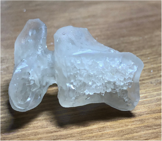 Material characterization and selection for 3D-printed spine