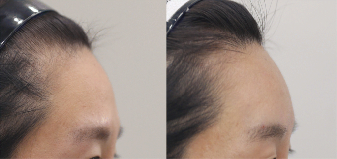 Clinical application of a new hyaluronic acid filler based on its