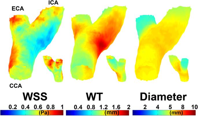 Spatial correlations between MRI-derived wall shear stress and