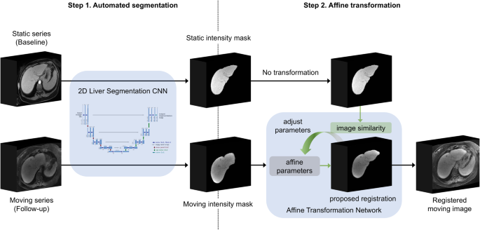 Fully automated convolutional neural network-based affine ...