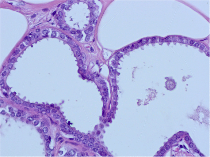 Columnar cell lesions of the breast: a practical review for