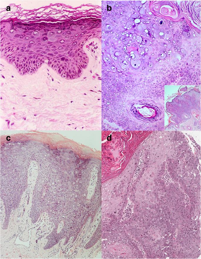 lymphoid papillomatosis patológia körvonalai