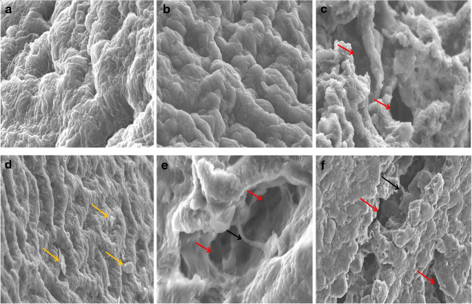 A renoprotective role of chitosan against lithium-induced