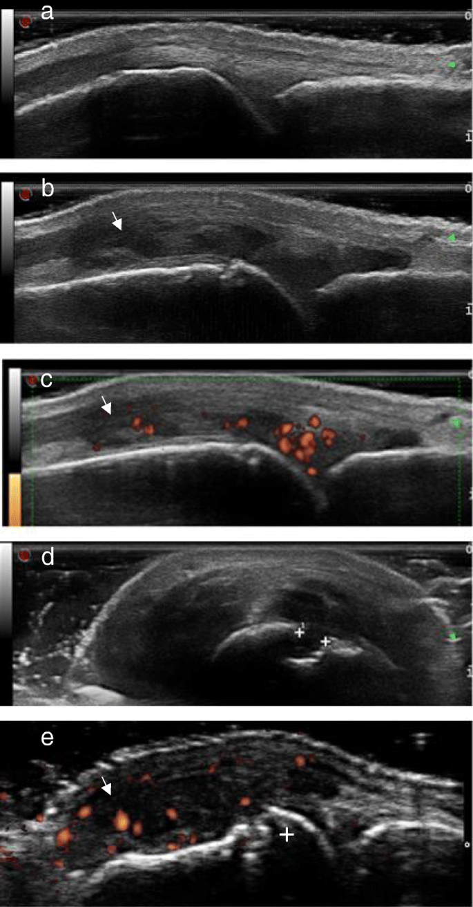 Ultrasound And Its Clinical Use In Rheumatoid Arthritis Where Do We Stand Advances In Rheumatology Full Text