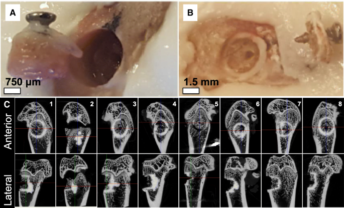 A biomechanical test model for evaluating osseous and