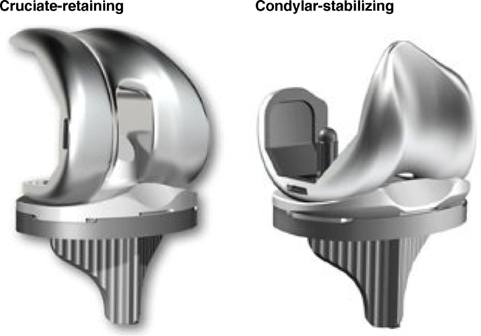Early functional outcomes after condylar-stabilizing (deep