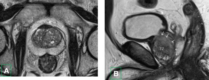 prostate adenoma mri A prosztata okozta gyulladása