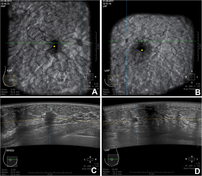 Automated Breast Ultrasound Abus As A Screening Tool Initial