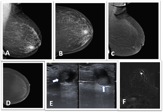 solitary intraductal papillomas