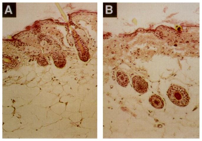 Reversal of Hypopigmentation in Phenylketonuria Mice by