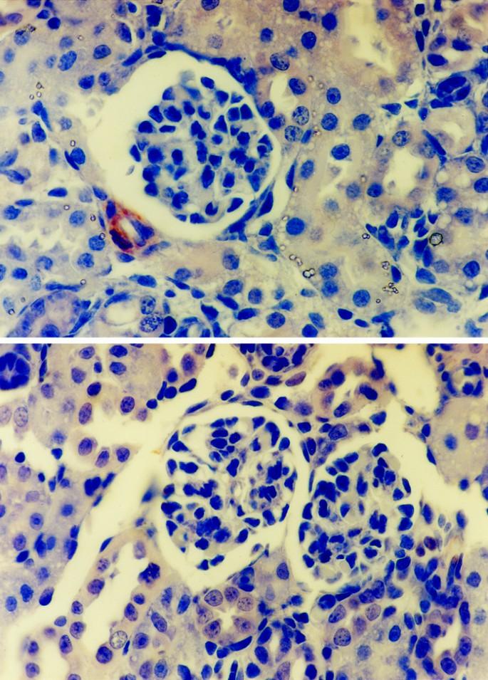 Maternal Protein Restriction Suppresses the Newborn Renin