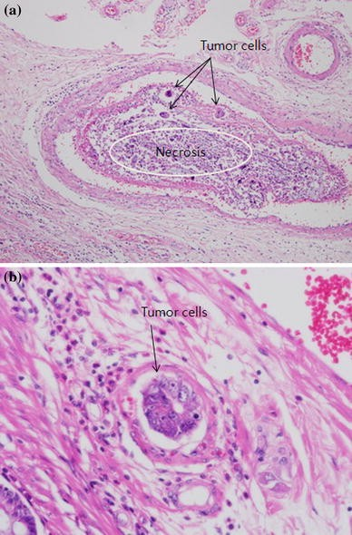 Lymphovascular Invasion Is A Significant Prognosticator In Rectal Cancer Patients Who Receive Preoperative Chemoradiotherapy Followed By Total Mesorectal Excision Springerlink