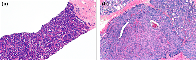 intraductal papilloma epidemiology