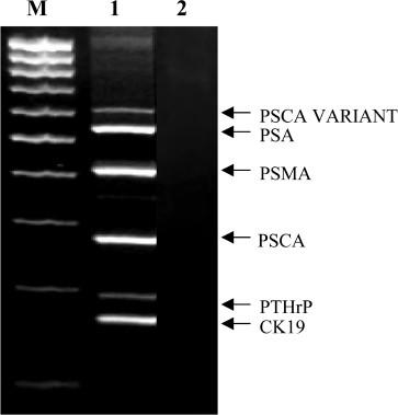 Prostatitis és PCR)