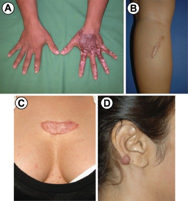 Hypertrophic Scarring And Keloids Pathomechanisms And Current And Emerging Treatment Strategies Springerlink