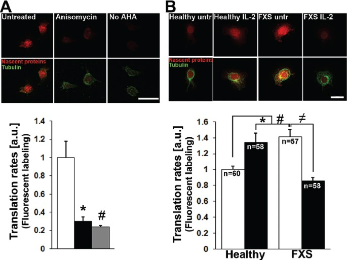 Excess Protein Synthesis in FXS Patient Lymphoblastoid Cells Can ...