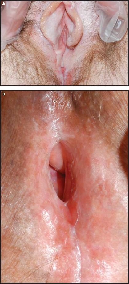 Lichen sclerosus vulva