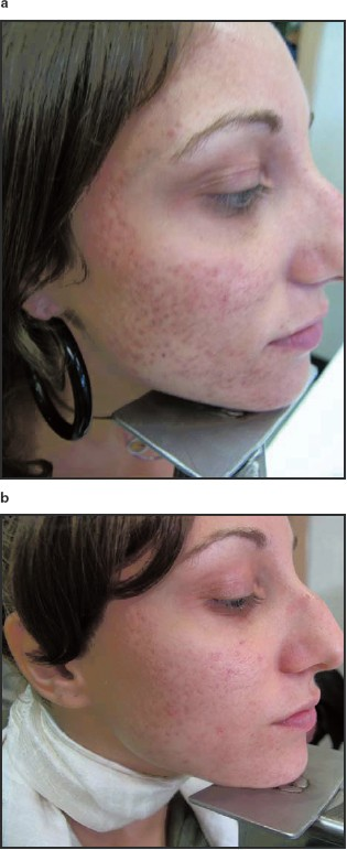 Resveratrol Containing Gel For The Treatment Of Acne Vulgaris