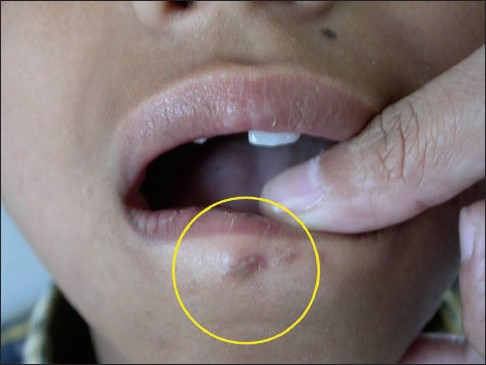 Tooth fragment embedded in the lower lip for 10 months