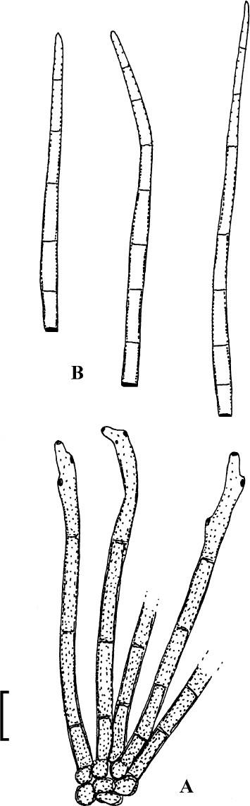 Helminthosporium oryzae padi, Post navigation - Hongo helminthosporium sacchari