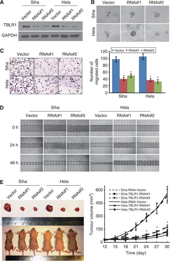 Berberine Reverses Epithelial-to-Mesenchymal Transition