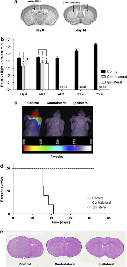 Pretreatment of brain with AAV-cBA-IFn-β prevents