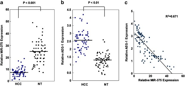 MicroRNA-375 targets AEG-1 in hepatocellular carcinoma and