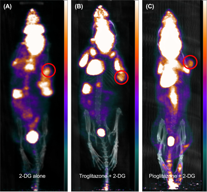 MRI with hyperpolarised [1-13C]pyruvate detects advanced