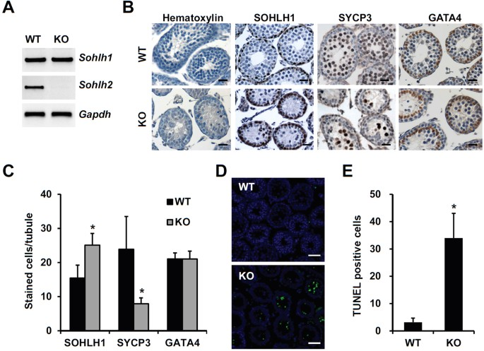 (A) SDS-PAGE analysis of full-length rat Lgr4 in