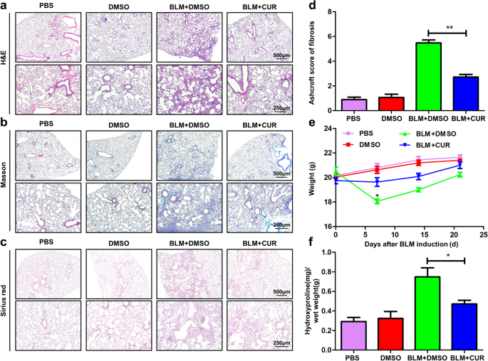 AOAH ameliorates LPS-induced lung injury and promotes