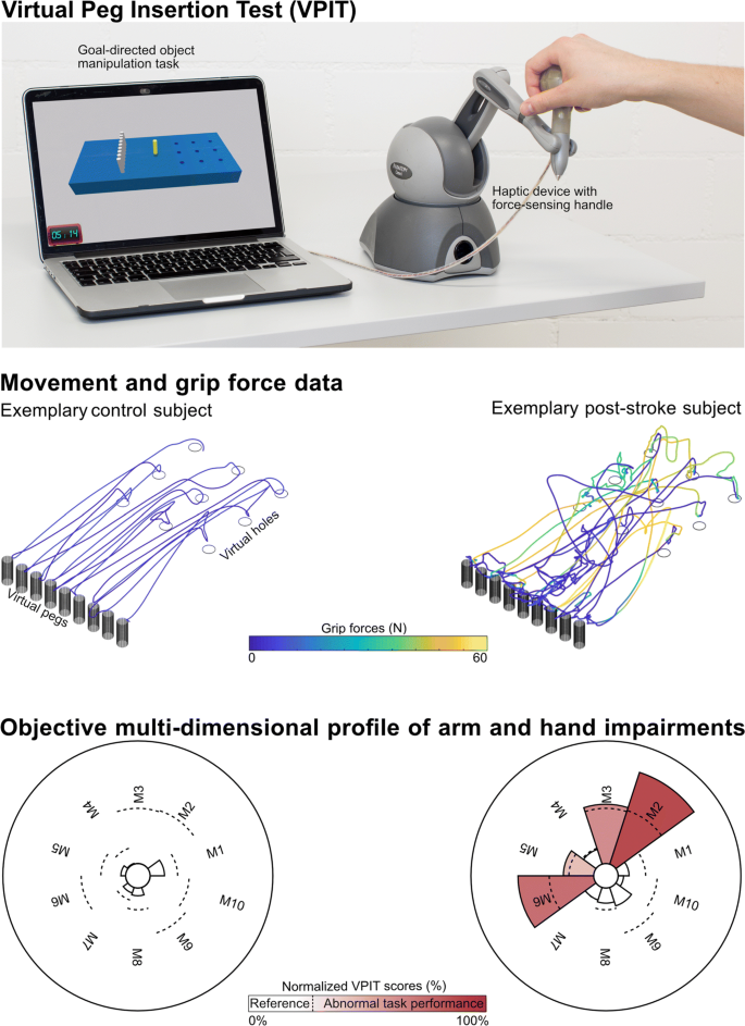 [ARTICLE] Technology-aided assessment of functionally relevant sensorimotor impairments in arm and hand of post-stroke individuals – Full Text