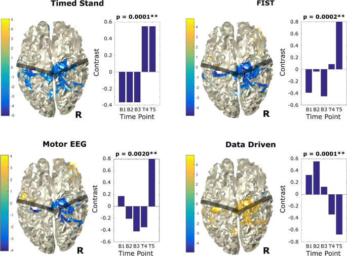 [ARTICLE] Portable neuromodulation induces neuroplasticity to re-activate motor function recovery from brain injury: a high-density MEG case study – Full Text