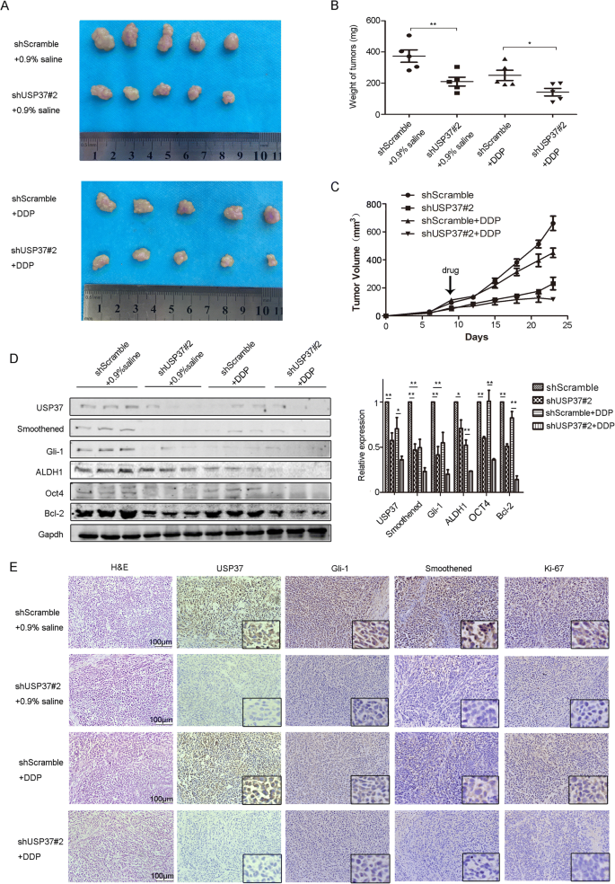 Abnormally elevated USP37 expression in breast cancer stem
