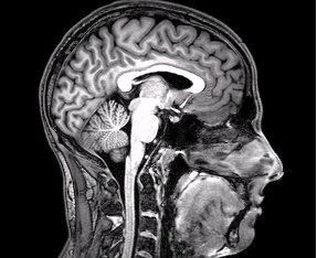 © DrOONeil, File:FMRI Brain Scan.jpg. Wikimedia. https://commons.wikimedia.org/wiki/File:FMRI_Brain_Scan.jpg#  (CC BY-SA 3.0)