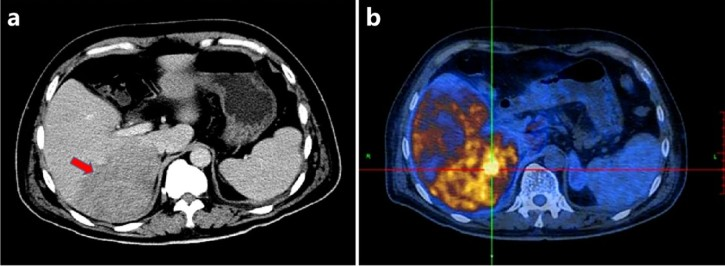 NeuEBV-positive intravascular large B-cell lymphoma of the liver: a case report and literature reviewer Inhalt