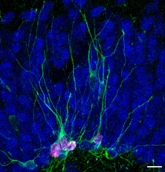 Featured Image - Dcx-expressing marmoset neurons