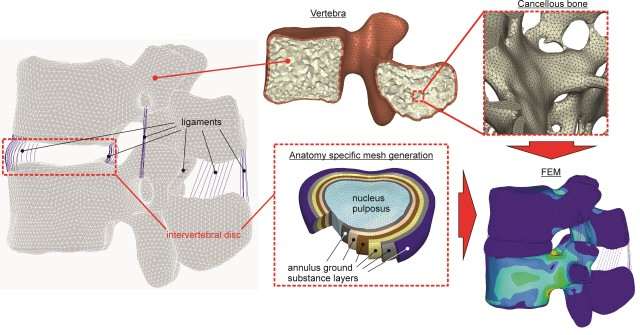 Nonintrusive 3d Reconstruction Of Human Bone Models To Simulate