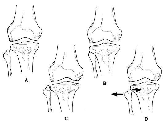 Laterale kniepijn en proximale tibiofibulaire subluxatie: een ...
