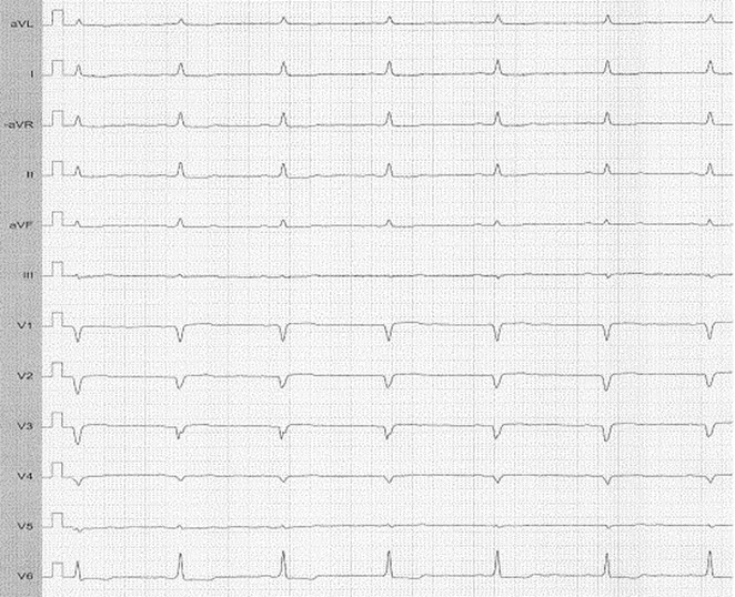 QRS fragmentation in acquired long QT syndrome does not always
