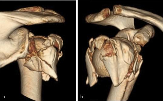 Osteoporotische Frakturen am proximalen Humerus | SpringerLink