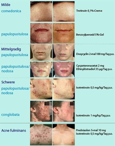 acne vulgaris papulopustulosa