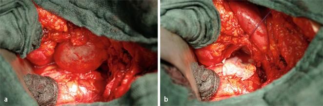 Lymphozele nach radikaler retropubischer Prostatektomie | SpringerLink