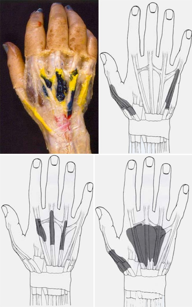 Aspekte der Fingerbeweglichkeit | SpringerLink