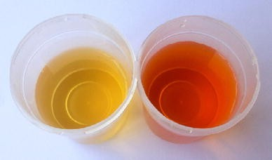 dark orange urine analysis - 388×228