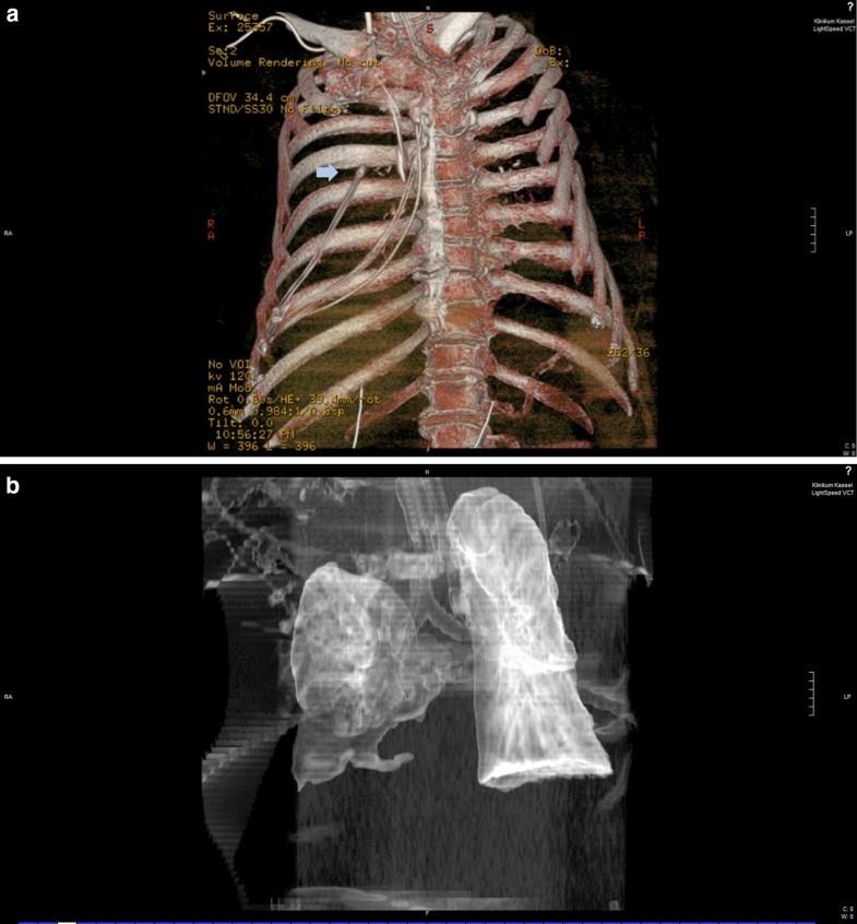 [Intensive Care Med重症医学影像]:鼻胃管进入气管插管患者的右侧胸腔