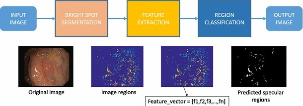 Bright spot regions segmentation and classification for