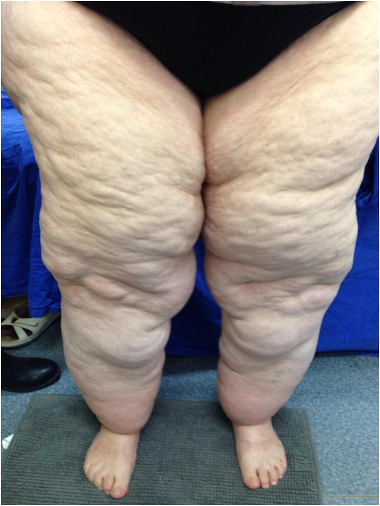 An approach to lipedema: a literature review of current